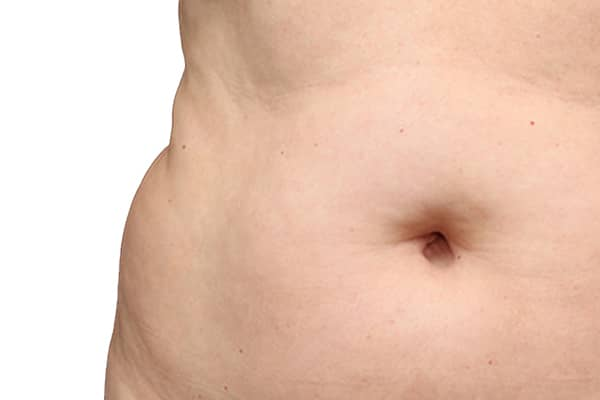 COOLSCULPTING 3 BEFORE